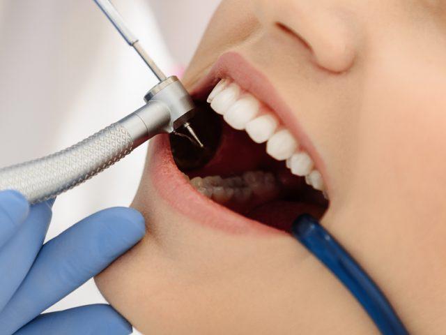 Align your Teeth